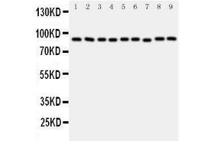 Image no. 5 for anti-Valosin Containing Protein (VCP) (AA 749-766), (C-Term) antibody (ABIN3043984)