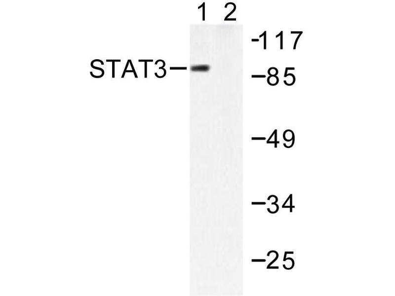 image for anti-STAT3 antibody (Signal Transducer and Activator of Transcription 3 (Acute-Phase Response Factor)) (ABIN271827)