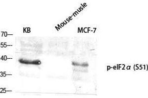 Image no. 2 for anti-Eukaryotic Translation Initiation Factor 2A, 65kDa (EIF2A) (pSer51) antibody (ABIN3181992)