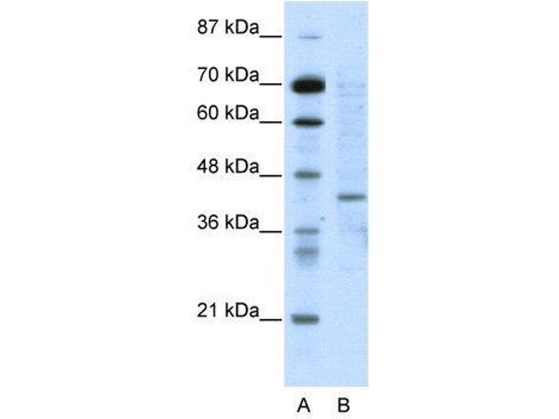 Western Blotting (WB) image for anti-Ring Finger Protein 1 (RING1) (N-Term) antibody (ABIN183627)