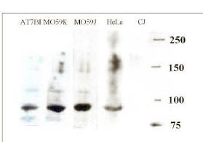 Western Blotting (WB) image for anti-DCLRE1C antibody (DNA Cross-Link Repair 1C) (AA 482-495) (ABIN117935)