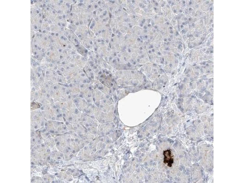 Immunohistochemistry (Paraffin-embedded Sections) (IHC (p)) image for anti-Receptor Accessory Protein 2 (REEP2) antibody (ABIN4349809)