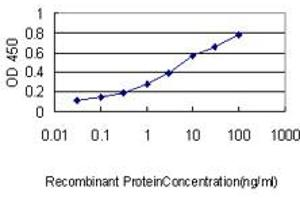 Image no. 3 for anti-Proliferating Cell Nuclear Antigen (PCNA) (AA 1-261) antibody (ABIN562135)