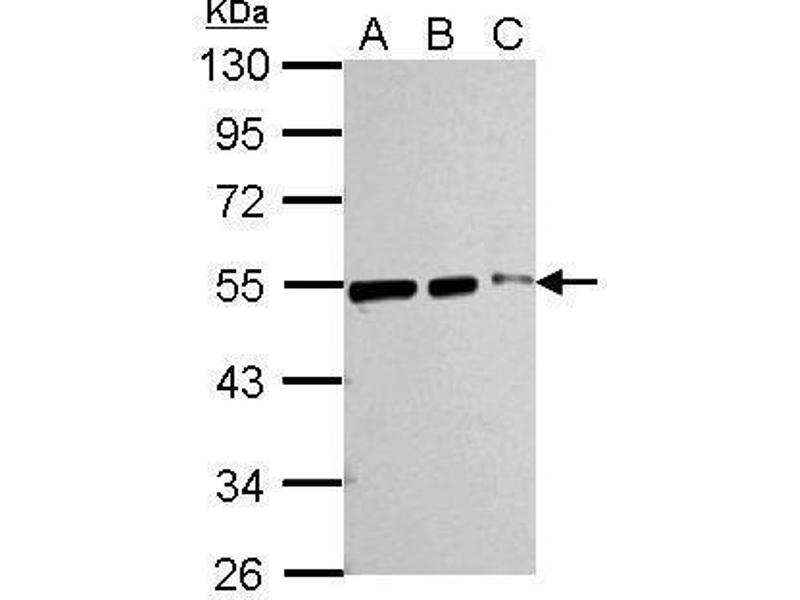 Western Blotting (WB) image for anti-Tubulin, beta (TUBB) (Center) antibody (ABIN2854998)