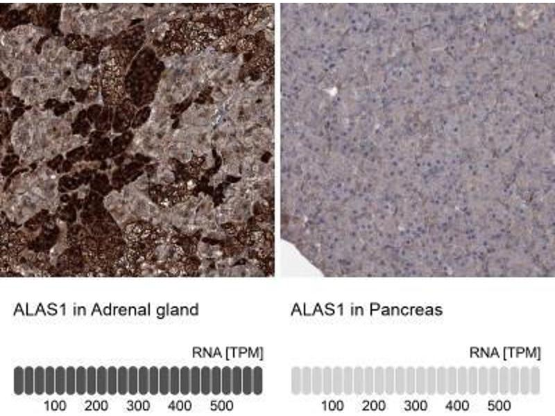 Immunohistochemistry (Paraffin-embedded Sections) (IHC (p)) image for anti-Aminolevulinate, delta-, Synthase 1 (ALAS1) antibody (ABIN4279106)