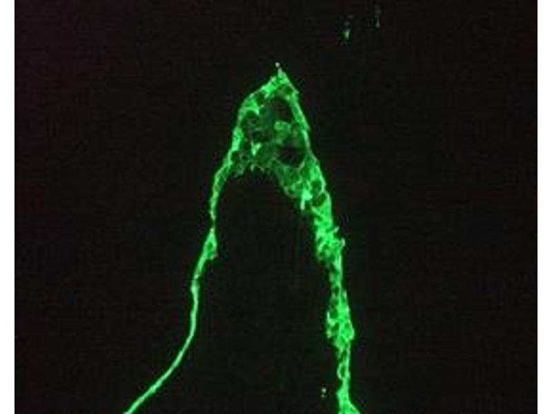 image for anti-Keratin 18 (KRT18) antibody (ABIN959489)