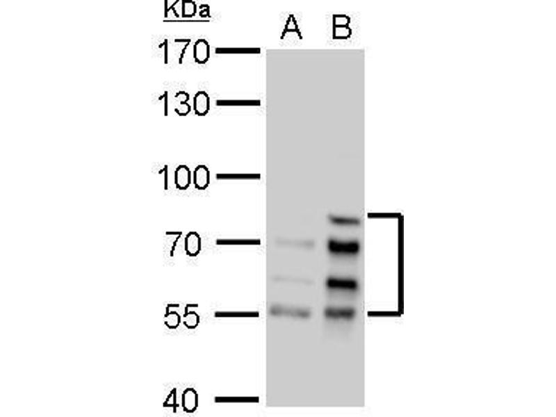 Western Blotting (WB) image for anti-Lamin A/C (LMNA) (Center) antibody (ABIN2854942)