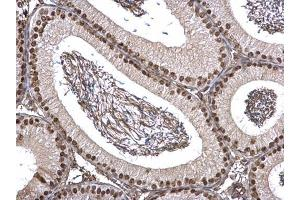 Image no. 3 for anti-Far Upstream Element (FUSE) Binding Protein 1 (FUBP1) (Center) antibody (ABIN2855856)
