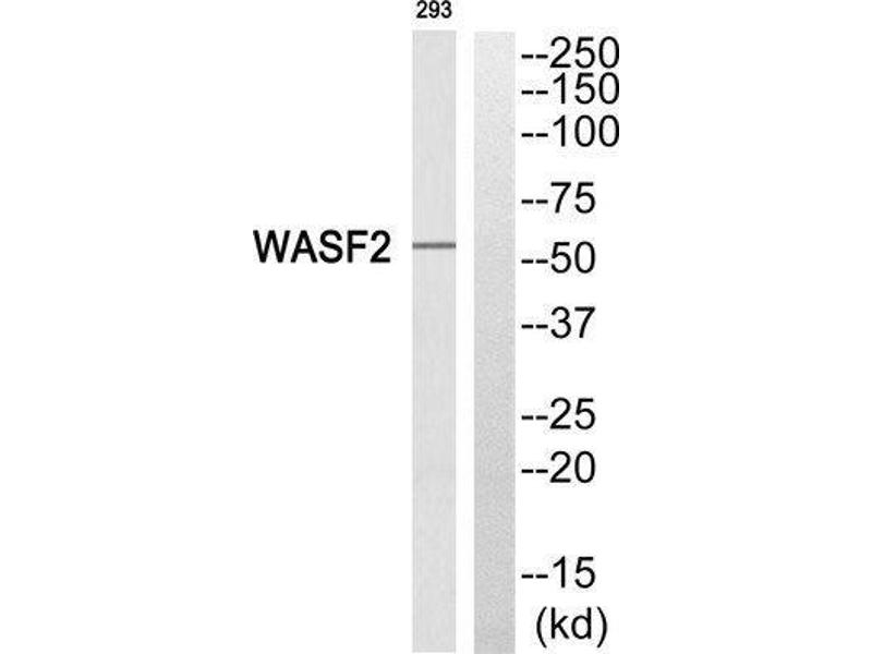 Western Blotting (WB) image for anti-WAS Protein Family, Member 2 (WASF2) (Internal Region) antibody (ABIN1852394)