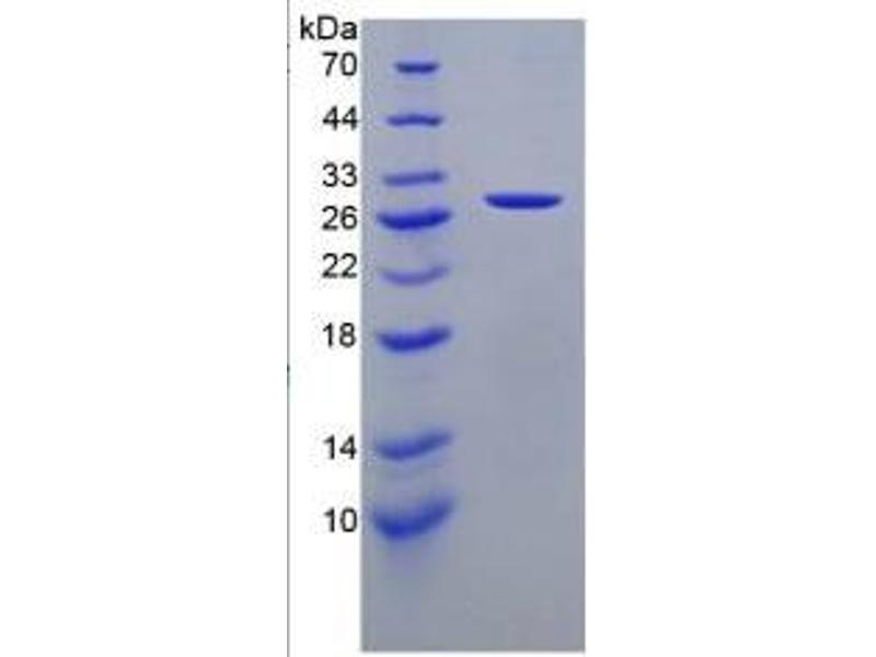 Cathepsin K (CTSK) ELISA Kit (2)