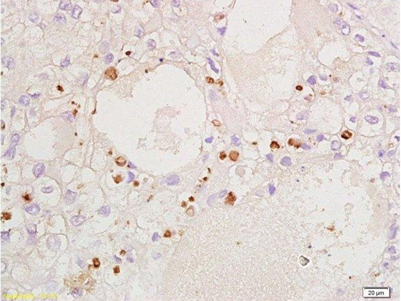 Immunohistochemistry (Paraffin-embedded Sections) (IHC (p)) image for anti-Cyclin-Dependent Kinase Inhibitor 1B (p27, Kip1) (CDKN1B) (AA 150-198) antibody (ABIN672621)