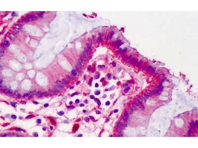 Image no. 2 for anti-LPP antibody (ABIN462159)