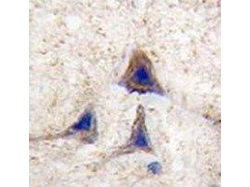 Immunohistochemistry (IHC) image for anti-V-Raf Murine Sarcoma Viral Oncogene Homolog B1 (BRAF) (AA 424-453) antibody (ABIN3029542)