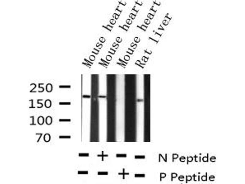 Western Blotting (WB) image for anti-V-Erb-B2 erythroblastic Leukemia Viral Oncogene Homolog 2, Neuro/glioblastoma Derived Oncogene Homolog (Avian) (ERBB2) (pTyr877) antibody (ABIN6256054)