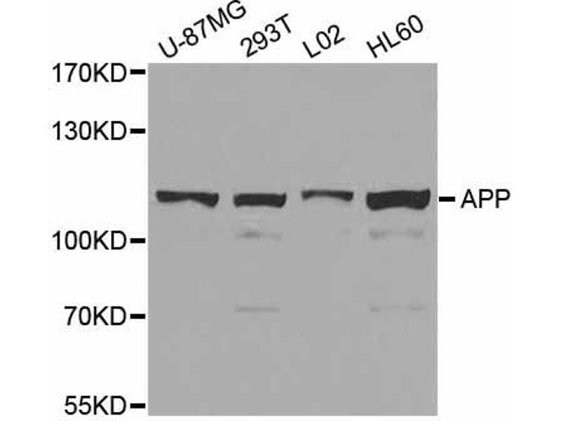 Image no. 3 for anti-Amyloid beta (Abeta) antibody (ABIN6566498)