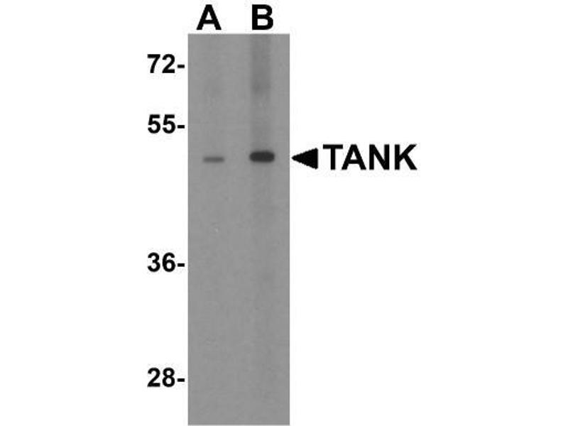 Western Blotting (WB) image for anti-TRAF Family Member-Associated NFKB Activator (TANK) (C-Term) antibody (ABIN4357804)