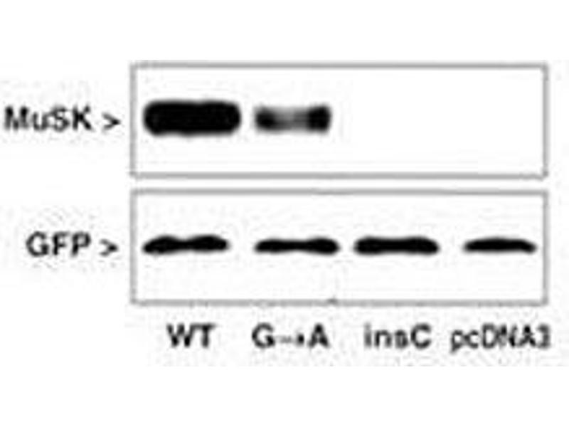 Western Blotting (WB) image for anti-Muscle, Skeletal, Receptor Tyrosine Kinase (MUSK) (AA 35-65) antibody (ABIN3031877)