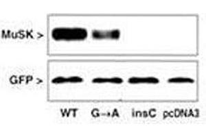 Western Blotting (WB) image for anti-MUSK antibody (Muscle, Skeletal, Receptor Tyrosine Kinase) (AA 35-65) (ABIN3031877)