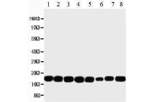 Western Blotting (WB) image for anti-Non-Metastatic Cells 1, Protein (NM23A) Expressed in (NME1) (AA 137-152), (C-Term) antibody (ABIN3044197)