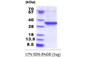 Image no. 1 for Eukaryotic Translation Elongation Factor 2 (EEF2) (AA 574-858) protein (His tag) (ABIN5853814)