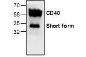 Western Blotting (WB) image for anti-CD40 Molecule, TNF Receptor Superfamily Member 5 (CD40) antibody (ABIN222919)