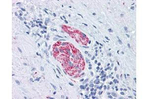 Immunohistochemistry (Paraffin-embedded Sections) (IHC (p)) image for anti-MAPT antibody (Microtubule-Associated Protein tau) (Ser404) (ABIN615572)