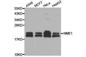 Western Blotting (WB) image for anti-Non-Metastatic Cells 1, Protein (NM23A) Expressed in (NME1) (C-Term) antibody (ABIN1873911)