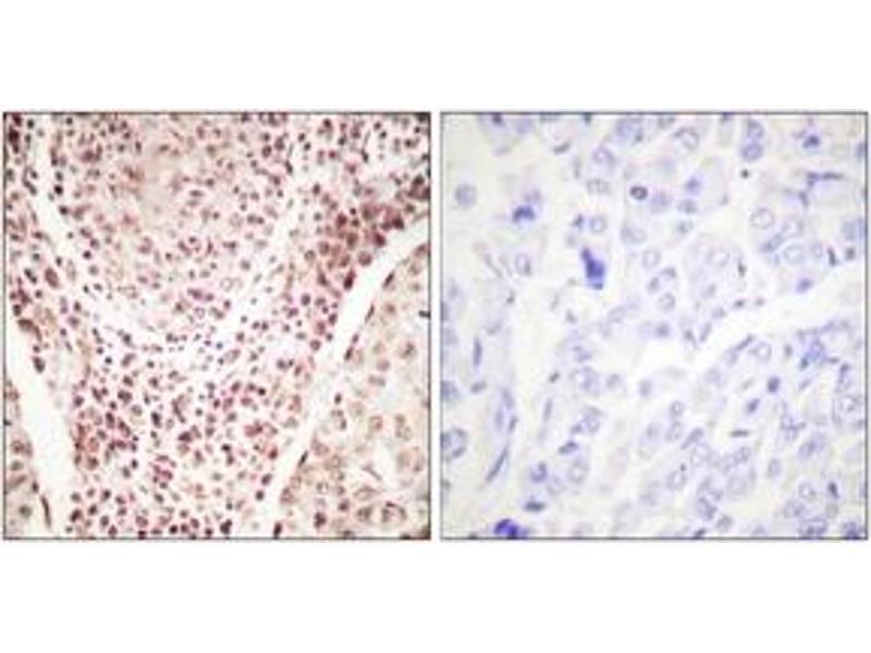Immunohistochemistry (IHC) image for anti-Checkpoint Kinase 2 (CHEK2) (AA 361-410), (pThr387) antibody (ABIN1531263)