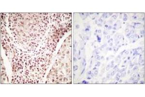 Immunohistochemistry (IHC) image for anti-Checkpoint Kinase 2 (CHEK2) (pThr387) antibody (ABIN1531263)