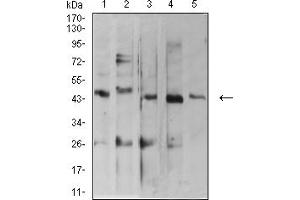 Western Blotting (WB) image for anti-ADP-Ribosylation Factor GTPase Activating Protein 1 (ARFGAP1) (AA 270-414) antibody (ABIN5611220)