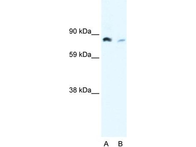 Western Blotting (WB) image for anti-NFKB2 antibody (Nuclear Factor of kappa Light Polypeptide Gene Enhancer in B-Cells 2 (p49/p100)) (N-Term) (ABIN182649)