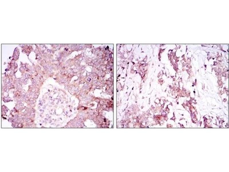 Immunohistochemistry (IHC) image for anti-Ataxin 1 antibody (ATXN1) (ABIN1105458)