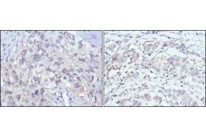 Immunohistochemistry (Paraffin-embedded Sections) (IHC (p)) image for anti-PAK2 antibody (P21-Activated Kinase 2) (ABIN4343466)