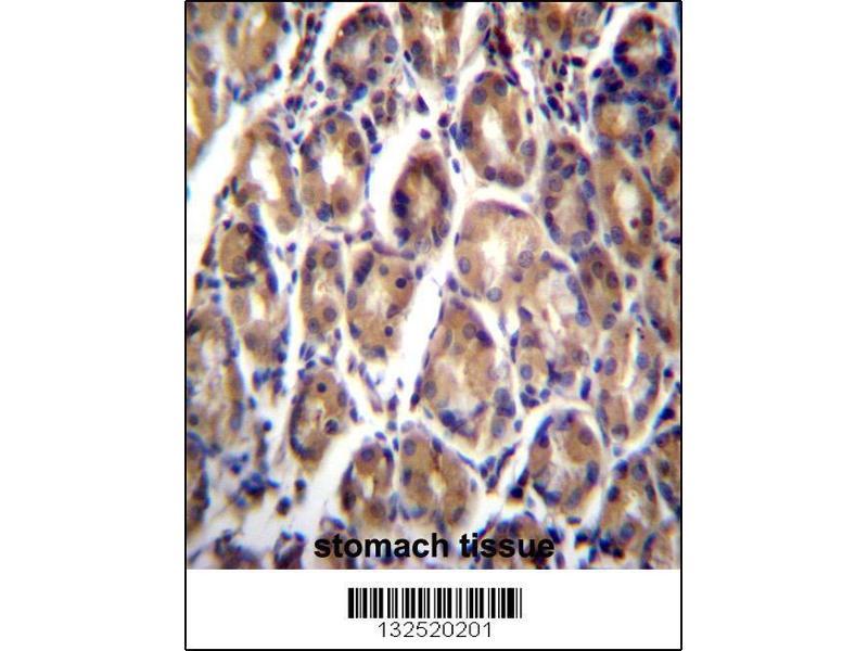 Immunohistochemistry (IHC) image for anti-Retinoic Acid Receptor Responder (Tazarotene Induced) 1 (RARRES1) (AA 134-163), (C-Term) antibody (ABIN657062)
