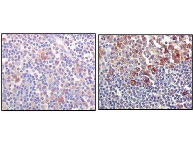 Immunohistochemistry (IHC) image for anti-Bruton Agammaglobulinemia tyrosine Kinase (BTK) antibody (ABIN968992)