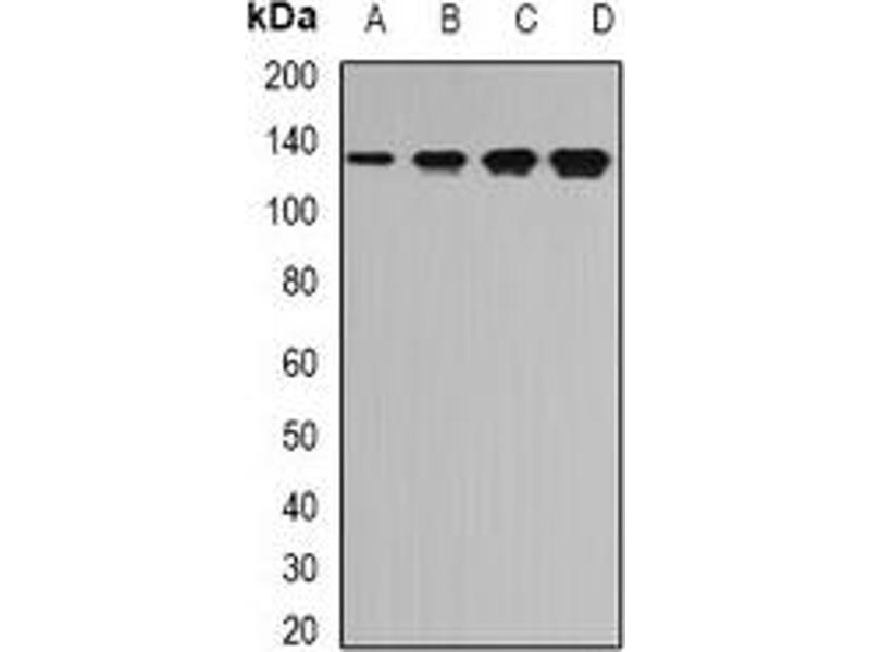 Western Blotting (WB) image for anti-Tripeptidyl Peptidase II (Tpp2) antibody (ABIN2967104)