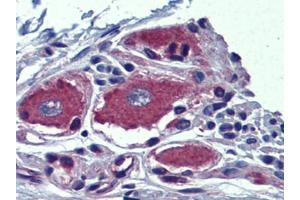 Immunohistochemistry (Paraffin-embedded Sections) (IHC (p)) image for anti-Aryl Hydrocarbon Receptor Interacting Protein-Like 1 (AIPL1) (Center) antibody (ABIN615383)