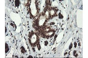 Image no. 1 for anti-Replication Factor C (Activator 1) 2, 40kDa (RFC2) (AA 1-234) antibody (ABIN1490617)