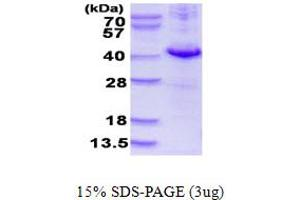 Image no. 1 for Dual Specificity Phosphatase 10 (DUSP10) (AA 149-482) protein (His tag) (ABIN668018)
