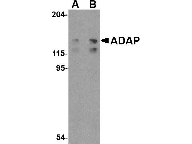 Western Blotting (WB) image for anti-FYB antibody (FYN-Binding Protein) (C-Term) (ABIN2155079)