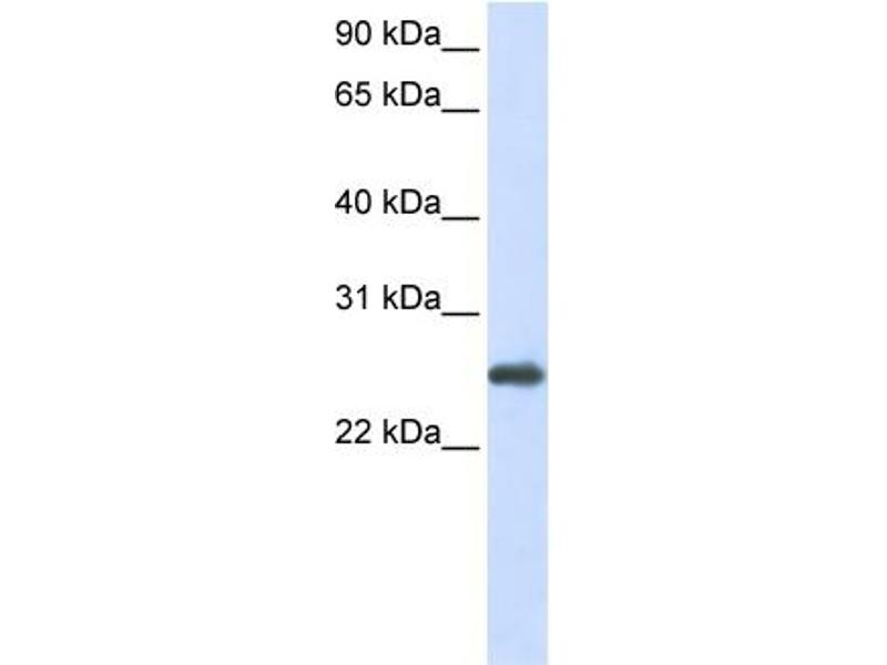 Western Blotting (WB) image for anti-Peroxiredoxin 1 antibody (PRDX1) (N-Term) (ABIN2773920)