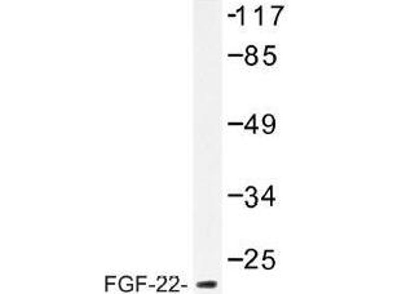 image for anti-FGF22 antibody (Fibroblast Growth Factor 22) (ABIN317810)