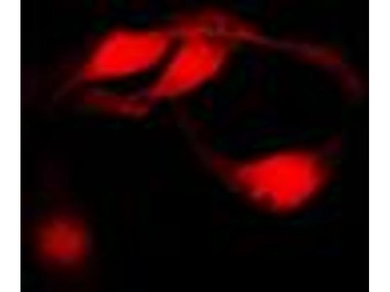 Immunofluorescence (IF) image for anti-CHEK1 antibody (Checkpoint Kinase 1) (Center) (ABIN2705867)