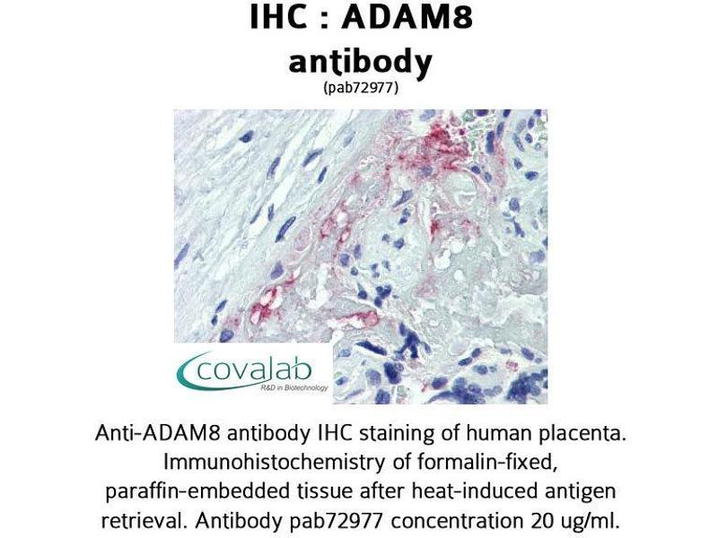 Image no. 2 for anti-ADAM Metallopeptidase Domain 8 (ADAM8) (AA 763-824) antibody (ABIN1731521)