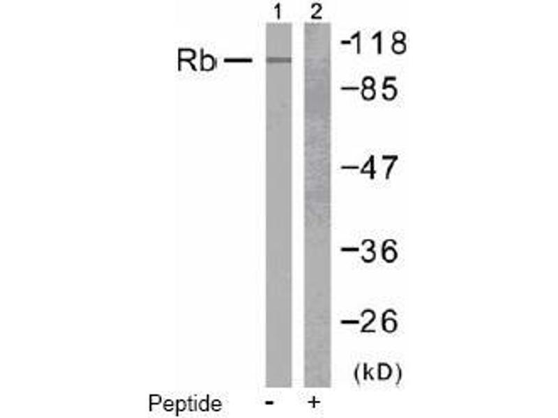 image for anti-Retinoblastoma 1 antibody (RB1) (Ser807) (ABIN197283)