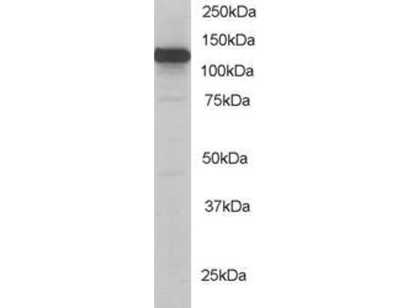 Western Blotting (WB) image for anti-Kinesin Family Member 5B (KIF5B) (C-Term) antibody (ABIN184774)