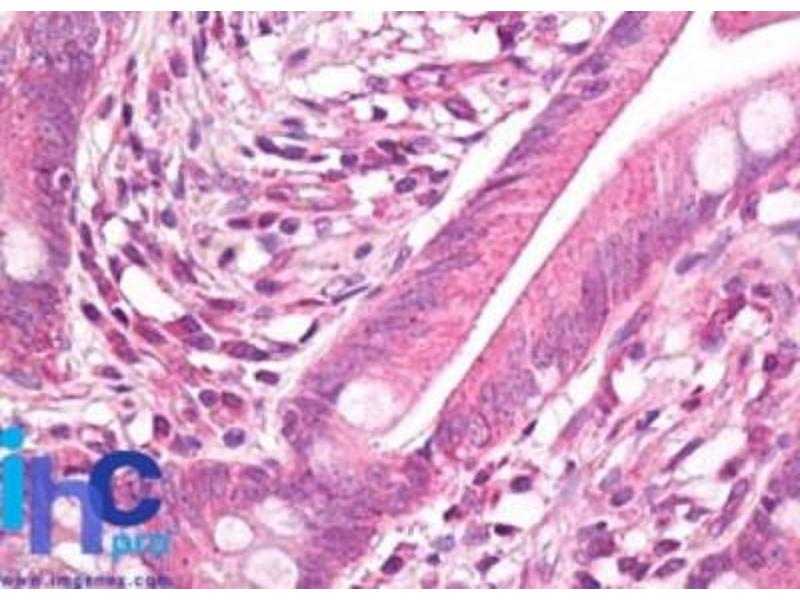 Immunohistochemistry (Paraffin-embedded Sections) (IHC (p)) image for anti-Heat Shock 27kDa Protein 1 (HSPB1) antibody (ABIN4320006)
