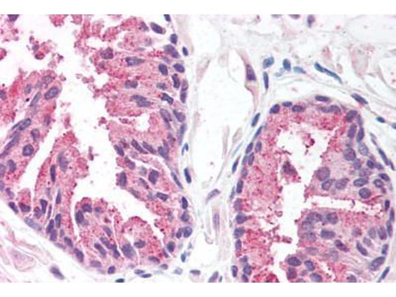 Immunohistochemistry (Paraffin-embedded Sections) (IHC (p)) image for anti-Malignant T Cell Amplified Sequence 1 (MCTS1) (AA 3-14) antibody (ABIN214274)