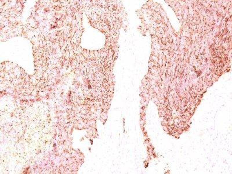 image for anti-Chromogranin A (CHGA) antibody (PerCP) (ABIN6160782)