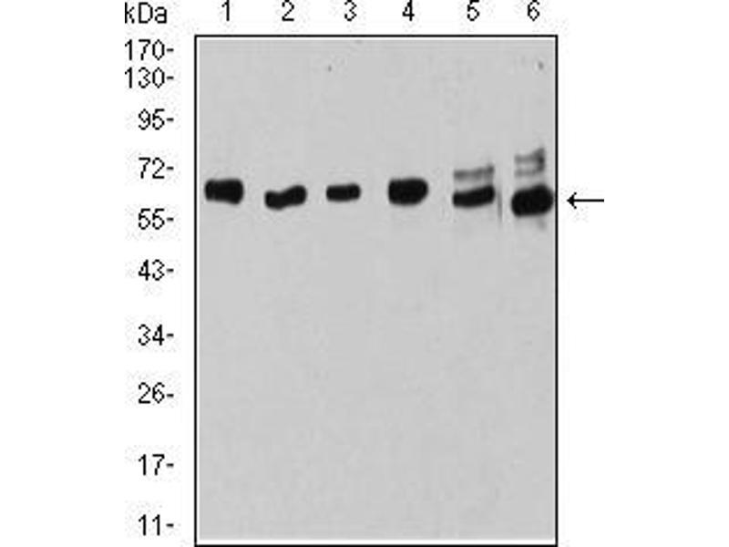 Image no. 2 for anti-Estrogen Receptor 1 (ESR1) (AA 2-185) antibody (ABIN5542594)